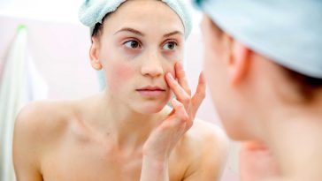 10-tips-to-reduce-under-eye-puffiness