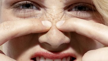 Pimples-on-the-nose-Causes-and-Treatments