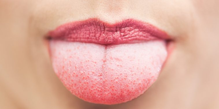 Pimples-on-the-tongue-Causes-and-Treatments