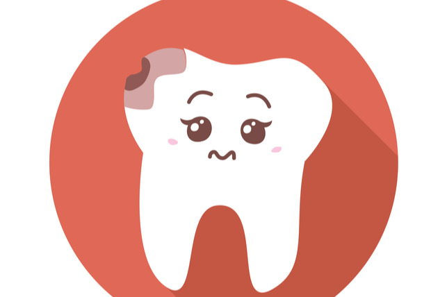 Cavities tooth decay - Symptoms and causes
